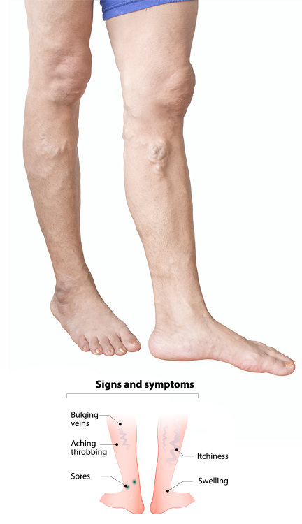 The vein clinic specialist consultant vascular surgeons explain signs and symptoms of varicose veins